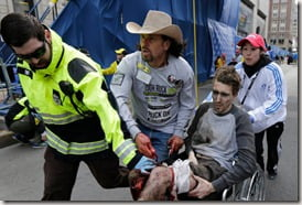 Jeff Bauman Boston Marathon shocking picture