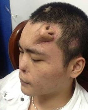 Xiaolian- Chinese Man Who Had a Nose Grown on His Forehead by Surgeons