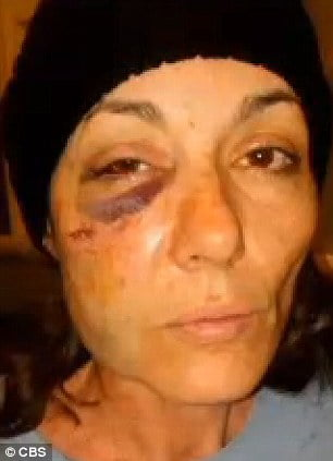 Cassandra Feuerstein- Chicago Woman Suffered Horrific Injuries by Skokie Police Officer