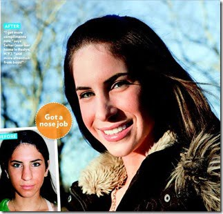 Jen Selter Before and after plastic surgery