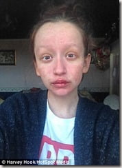 leanne-howes-stevens-johnson-syndrome