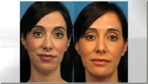 Triana Lavey- woman Who Spend $15,000 in plastic surgery to get the perfect Selfie