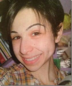 Loredana Verta – Teen with anorexia described her disease