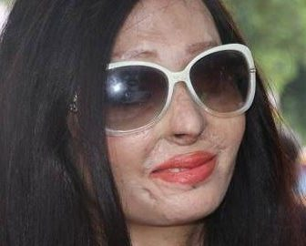 Reshma Qureshi Acid attack Victim Rocks NY Fashion Week