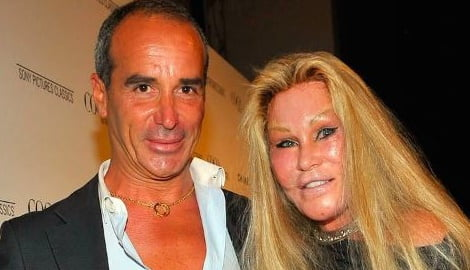 Lloyd Klein Cat woman Jocelyn Wildenstein's Boyfriend (Bio ...